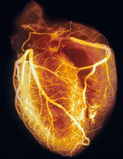 PMCC Heart